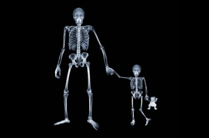 Parent X-Ray